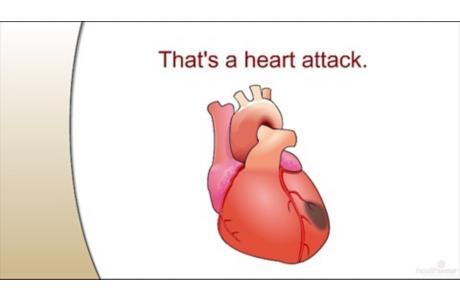 How a Heart Attack Happens