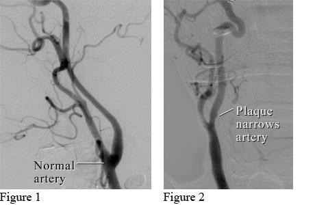 Angiograms of a normal neck artery and a neck artery narrowed by plaque