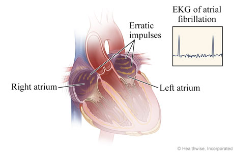 How atrial fibrillation happens