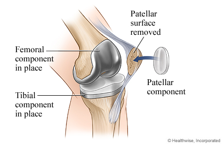 Knee replacement surgery: Patellar component