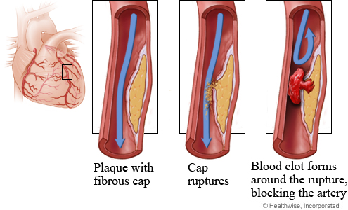 Plaque rupture and clot formation in a coronary artery