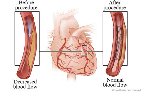 Decreased blood flow caused by narrowed artery before angioplasty compared to normal blood flow after angioplasty
