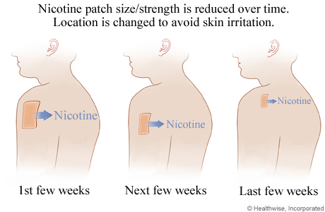 How a nicotine patch is used