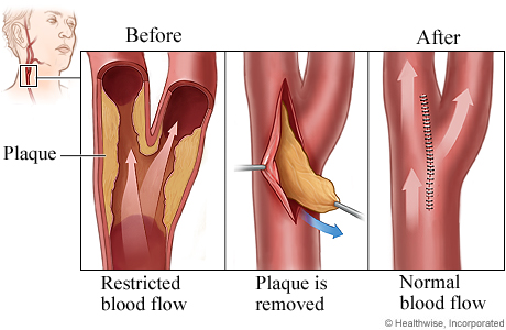 Carotid endarterectomy procedure