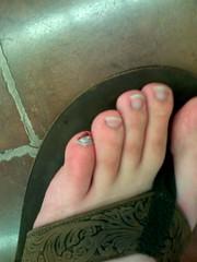 pinky-toe