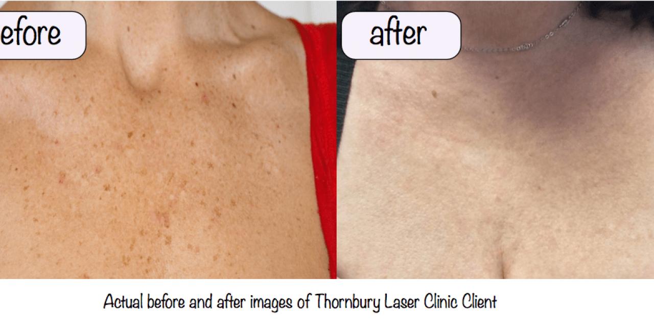 Skin rejuvenation treatments –Thornbury Laser Clinic Makeover