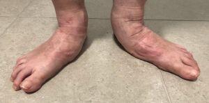 A pair of very flat feet