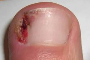 A nasty ingrown toenail
