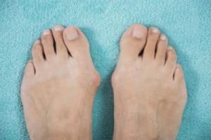 A picture of 2 feet with bunions on a blue background