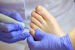 A podiatrist treats the feet of a patient