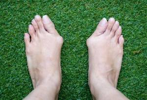 A pair of feet with severe bunions