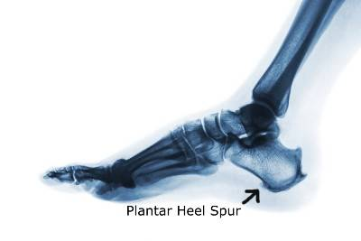 An x-ray showing a plantar heel spur