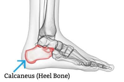 A diagram showing the calcaneus or heel bone