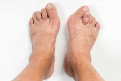 A foot with HAV deformity and a hammer toe