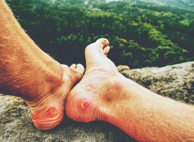 A man's feet are near the edge of a cliff with blisters on the back of the heels.