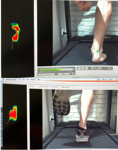 Two images of a lower leg and foot on a treadmill showing one without shoes and one with shoes and orthotics. The difference is in how much the orthotics prevent excess flattengin of the arch.