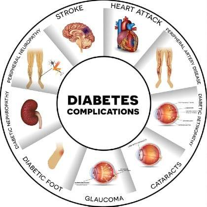 A diagram showing the affects on different body parts of diabetes