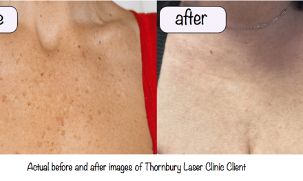 Skin rejuvenation treatments –Thornbury Laser Clinic Makeover