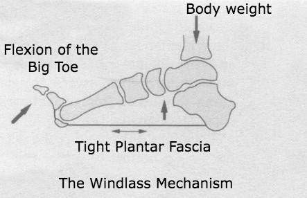 A diagram of the windlass mechanism showing flexion of the big toe and tightening of the plantar fascia