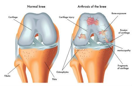 A diagram of a healthy knee and a knee with osteo-arthritis