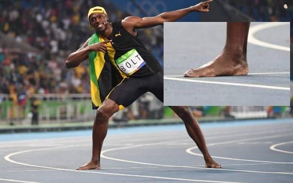 Usain Bolt's Feet appear quite flat