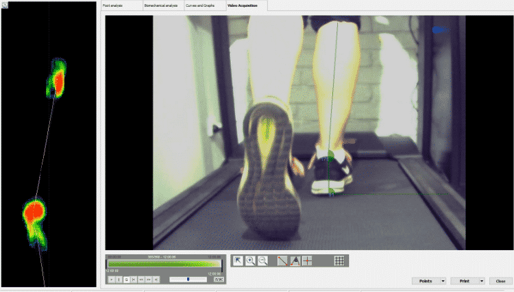 high speed gait analysis