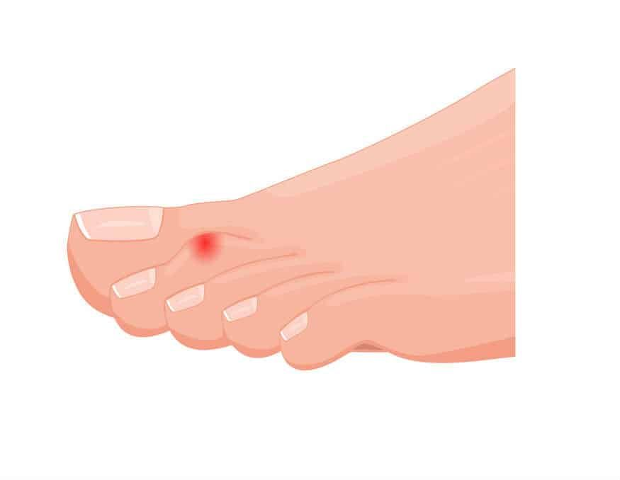 A drawing of a hammer toe
